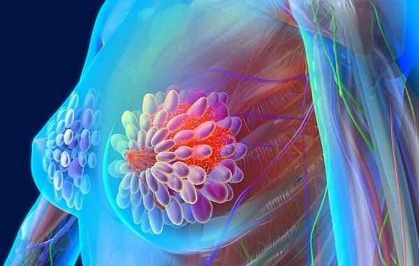 Chỉ với 3 bước thăm khám, phát hiện sớm ung thư vú