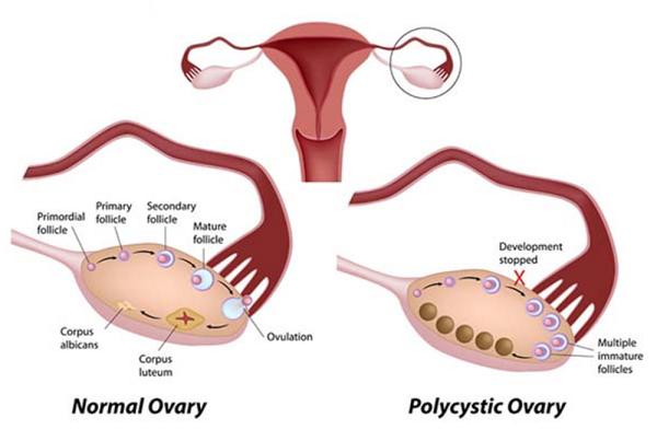 Điều trị buồng trứng đa nang thế nào