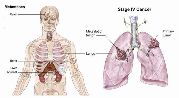 Ung thư phổi di căn thường phát triển từ giai đoạn cuối.