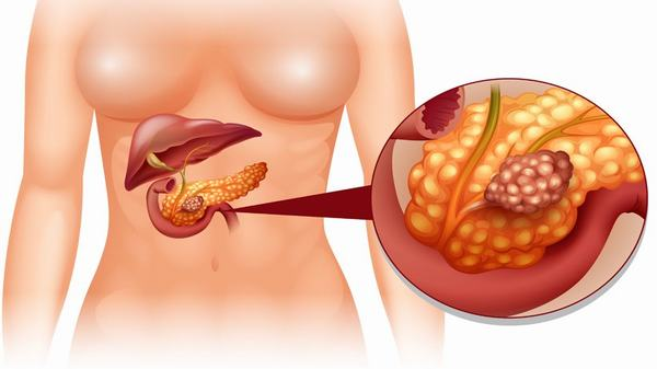 Ở giai đoạn IV là giai đoạn tế bào ung thư phát triển to, xâm lấn sang các cơ quan lân cận