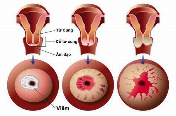 Viêm lộ tuyến cổ tử cung là tình trạng các tế bào ở bên trong cổ tử cung phát triển và xâm lấn ra bên ngoài cổ tử cung.