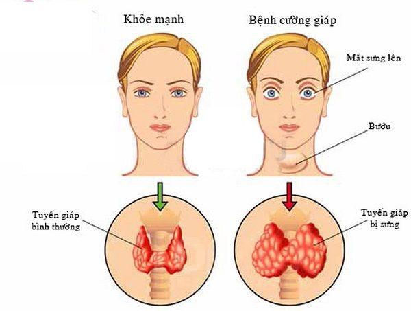 cường giáp triệu chứng và cách điều trị