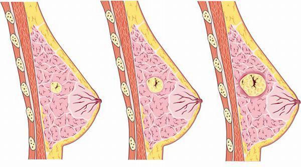 U nang tuyến vú có thể phát triển thành ung thư nên cần theo dõi và điều trị sớm