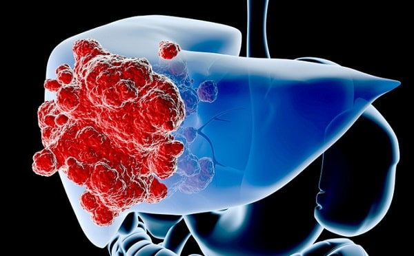 Ung thư đại tràng di căn gan