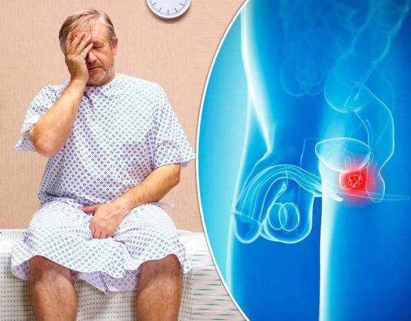 3 loại ung thư thường gặp ở nam giới