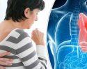 Nam hay nữ dễ mắc ung thư phổi? Sự thật không như bạn nghĩ