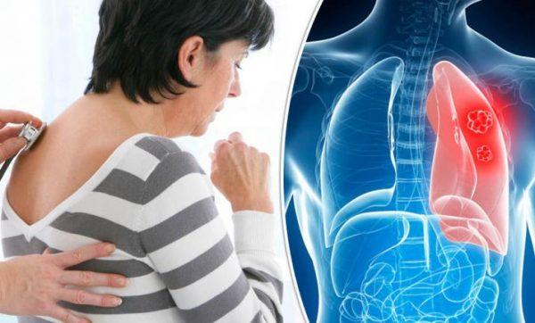 Triệu chứng của ung thư phổi