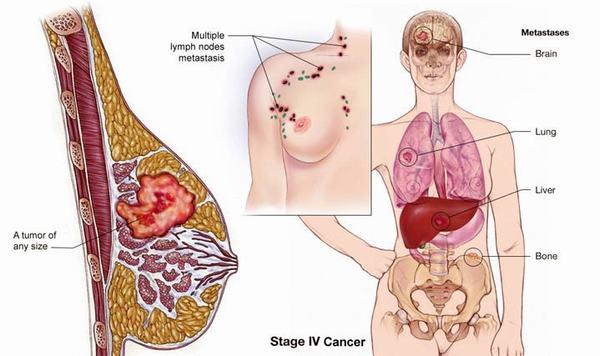 Ung thư vú có thể gặp ở nhiều chị em phụ nữ trên 30 tuổi, có tiền sử gia đình mắc bệnh hoặc sử dụng hormone trong thời gian dài