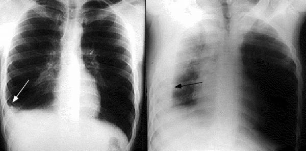 Tràn dịch màng phổi là tình trạng lượng dịch tích tụ trong khoang trống giữa phổi và thành ngực quá nhiều