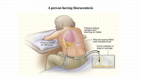 Hút dịch là phương pháp điều trị chủ yếu cho các trường hợp bị tràn dịch màng phổi