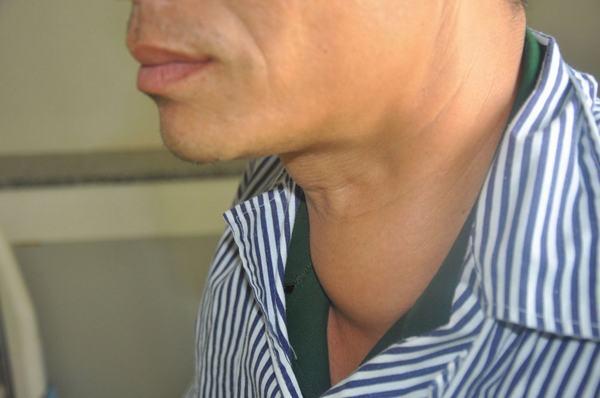 U nang tuyến giáp thường gây ra triệu chứng vùng tuyến giáp sưng to, có thể đau hoặc không đau, ảnh hưởng tới thẩm mỹ