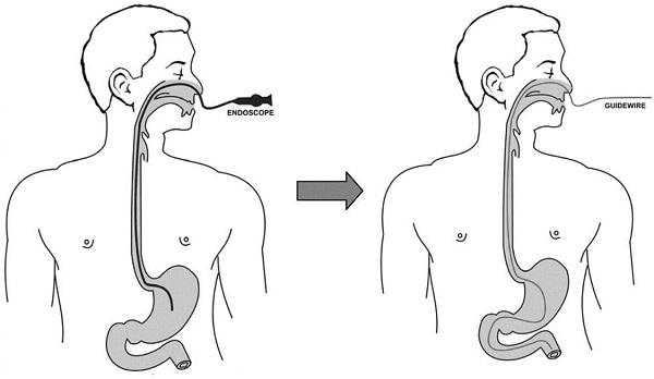 Nội soi dạ dày đường mũi là phương pháp mới, không cần gây mê, hoàn toàn thoải mái cho khách hàng