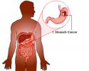Ung dạ dày di căn phổi có chữa khỏi không? Thời gian sống bao lâu?