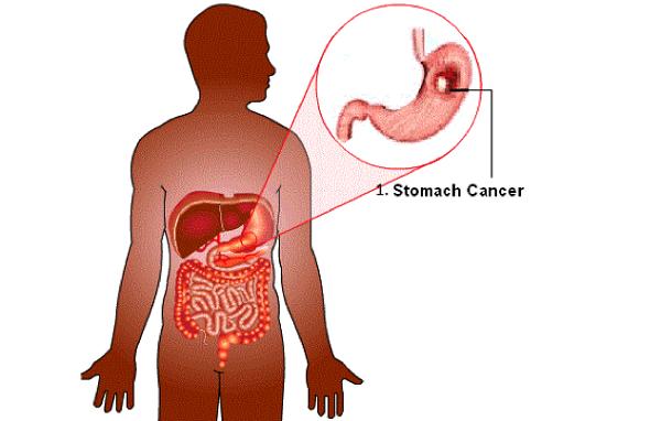 Ung thư dạ dày di căn sang phổi là giai đoạn cuối của bệnh, lúc này bệnh đã tiến triển sang giai đoạn nặng.