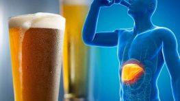5 lý do khiến người Việt dễ mắc ung thư gan