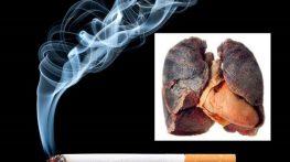 Những bệnh viện tầm soát ung thư phổi
