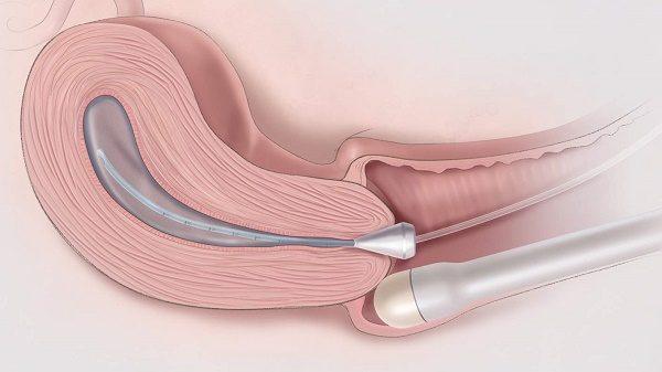 Dấu hiệu và triệu chứng ung thư buồng trứng tái phát