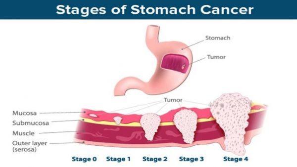Khi không được phát hiện và điều trị kịp thời, tế bào ung thư dạ dày sẽ tiến triển nhanh sang giai đoạn cuối, di căn