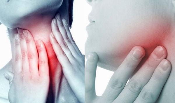 Hạch bạch huyết là cơ quan đầu tiên mà tế bào ung thư vòm họng dễ dàng di căn tới