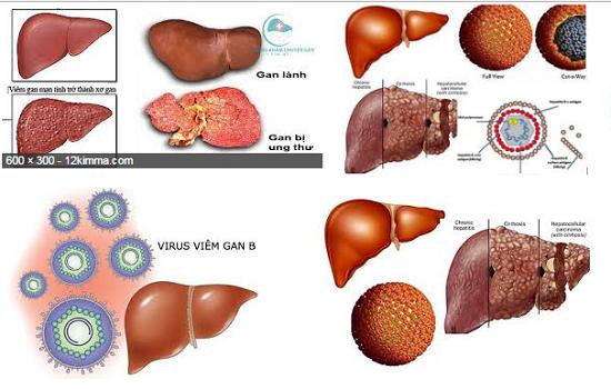 Việt Nam đứng thứ 3 thế giới về tỷ lệ mắc ung thư gan