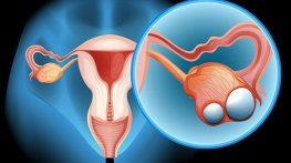 Dấu hiệu ung thư buồng trứng giai đoạn cuối