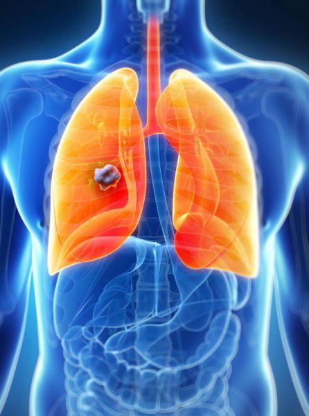 Triệu chứng ung thư phổi bị tràn dịch