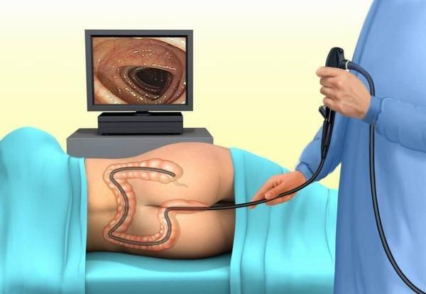 Nội soi đại tràng sẽ giúp phát hiện sớm sự hiện diện của khối u ở khu vực này