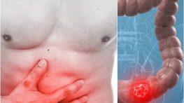 Phòng ngừa những bệnh ung thư thường gặp sau tuổi 40
