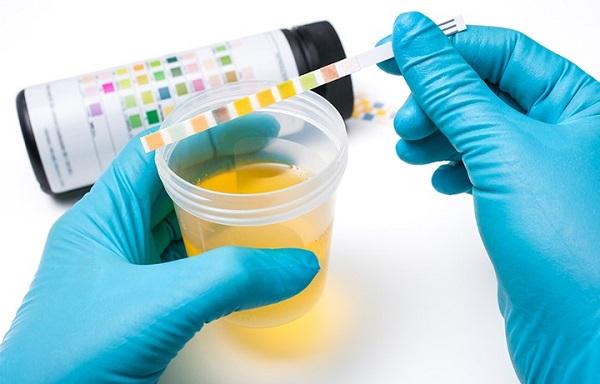 Ung thư bàng quang rất nguy hiểm nên bạn cần đi khám và làm xét nghiệm kiểm tra