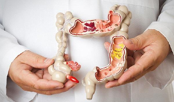 Ung thư đường tiêu hóa là bệnh nguy hiểm