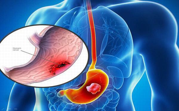 Ung thư dạ dày là bệnh lý thường gặp nhất ở đường tiêu hóa
