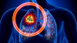 Những điều nhất định nên biết về ung thư phổi