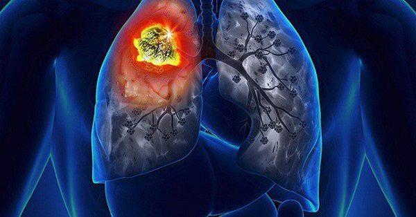 Dấu hiệu ung thư phổi di căn hạch trung thất