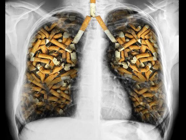 Người bệnh hút thuốc lá trong 20 năm