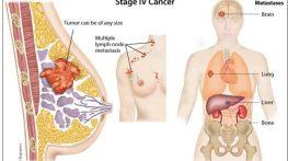 Là nữ giới, không nên bỏ qua tầm soát ung thư vú – phụ khoa