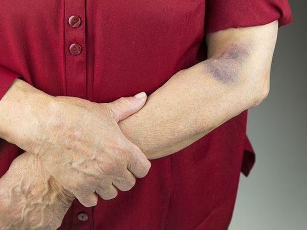 Vết bầm trên da lâu khỏi – cảnh giác ung thư da