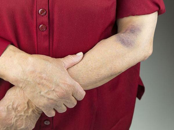 Chớ chủ quan với những bất thường trên da như vết bầm tím lâu ngày không khỏi