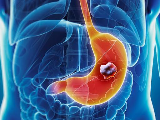 Tầm soát ung thư Dạ dày - Thực quản - Đại trực tràng nhận ngay ưu đãi giảm 30%