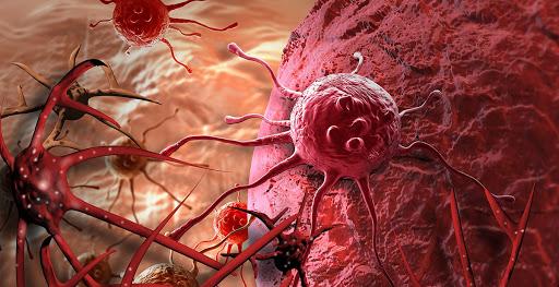Tặng ngay 30% các gói khám tầm soát ung thư tại phòng khám ĐKQT Thu Cúc